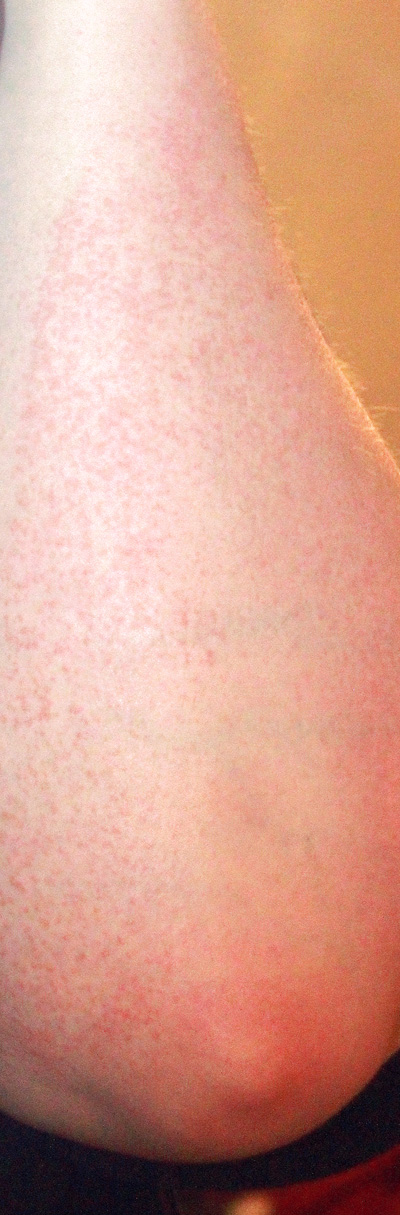 The rash on my arms